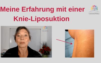 Meine Erfahrung mit einer Knie Liposuktion